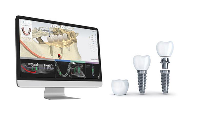3D Guided Dental Implants Melbourne