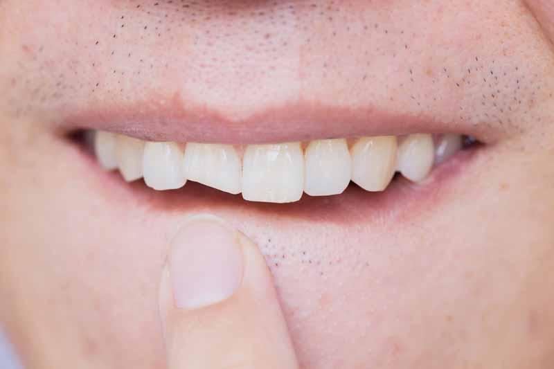 Cracked, Chipped of Broken Teeth