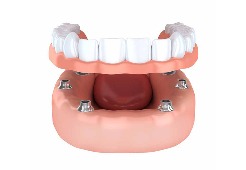 Dentures locked in place by dental implants