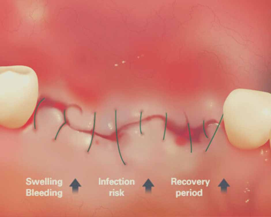 General Incision Surgery