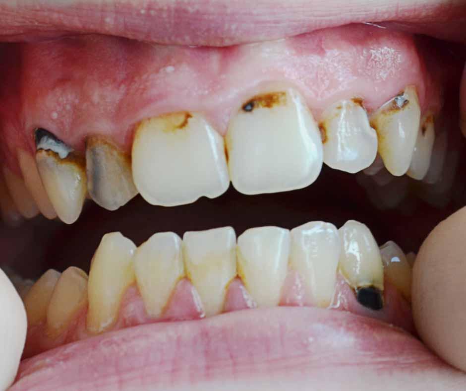 Gum Disease Treatment Melbourne