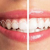 Gum lift with braces or Invisalign