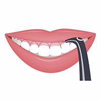Gum lift with porcelain veneers