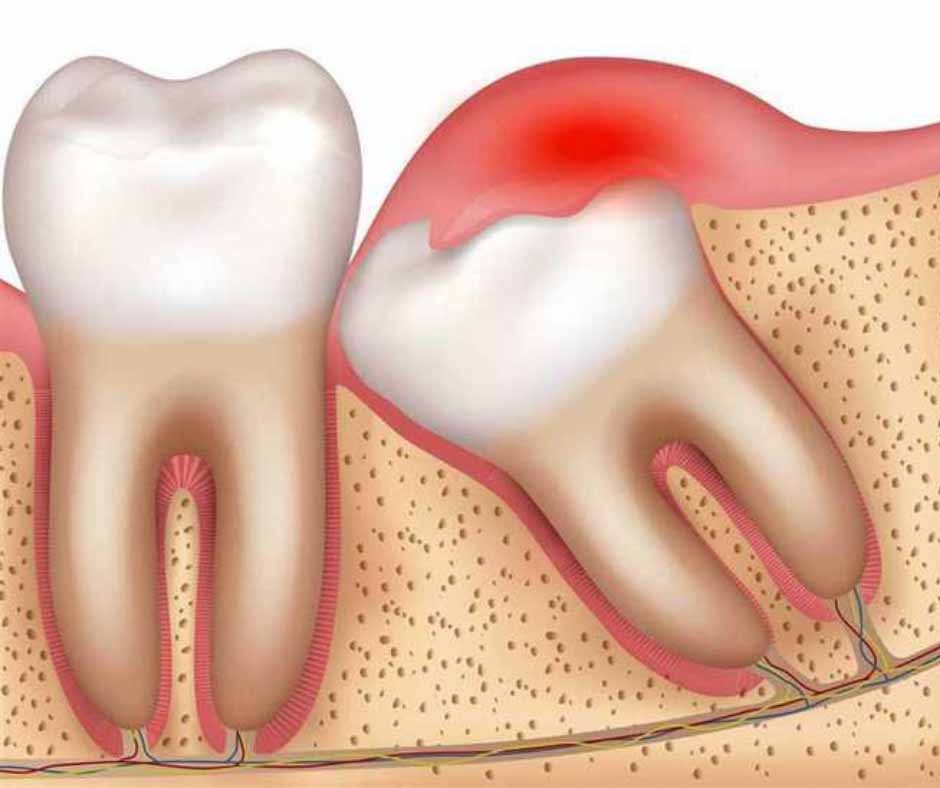 Impacted Wisdom Tooth Melbourne