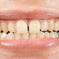 Improper teeth spacing