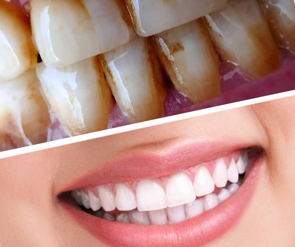 Stained and Discoloured Teeth
