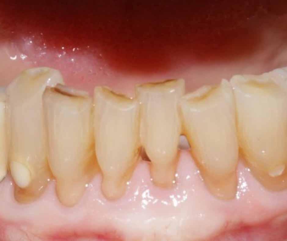 Worn Down Teeth Treatment Melbourne