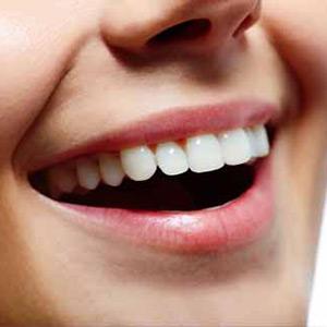 Improve smile