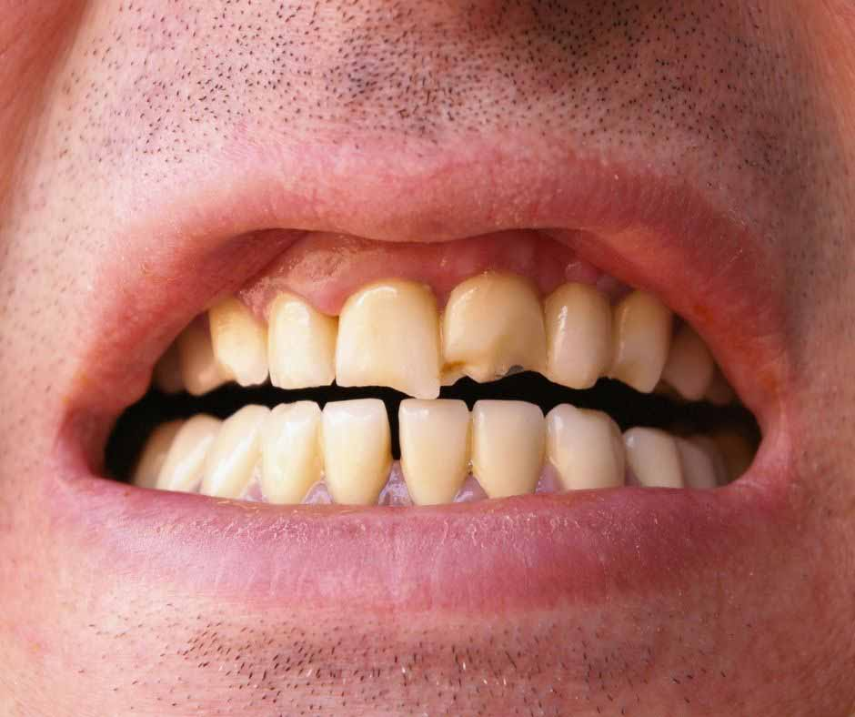 Broken or cracked tooth treatment