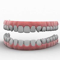 Loose teeth and dental equipment