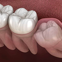 Mesial Impaction