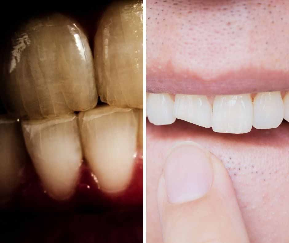 Solving problems of cracked and chipped teeth at Healthy Smiles in Blackburn