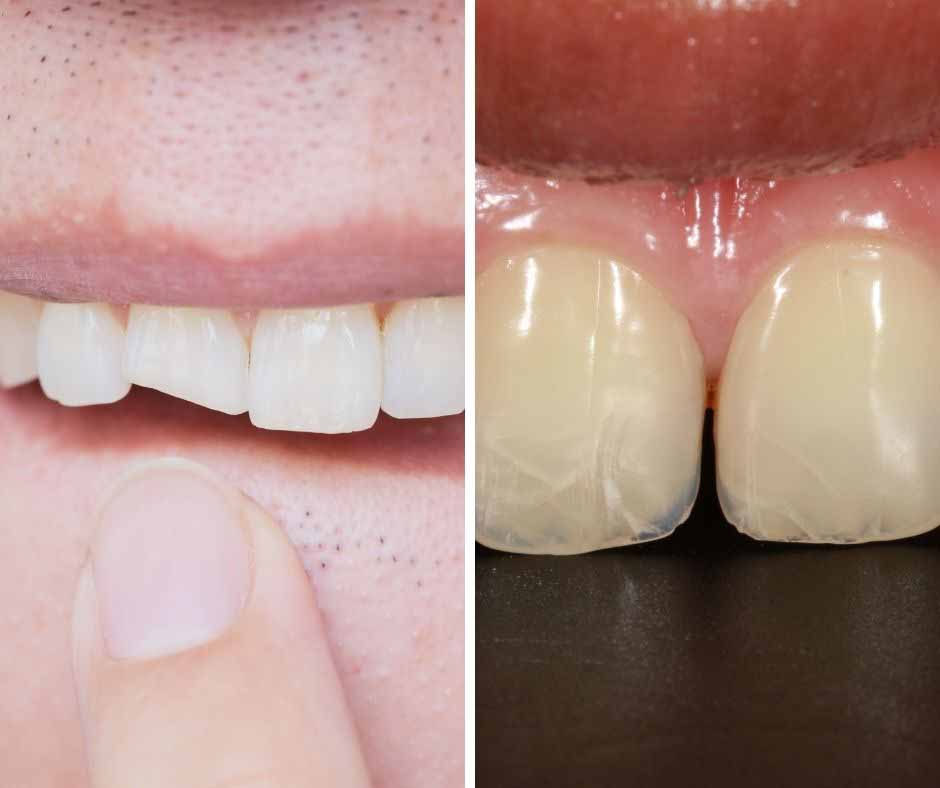 The difference between chipped and cracked tooth